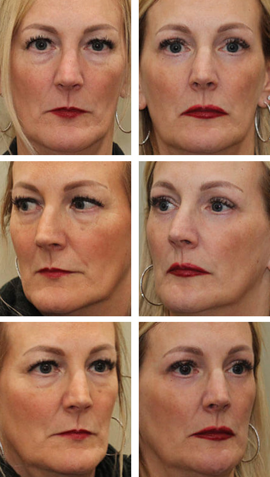 Before and After Picture  51 year old female – upper blepharoplasty, transconjunctival lower blepharoplasty, periocular fractional CO2 laser skin resurfacing.