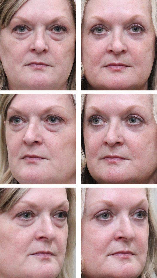 Before and After Picture  53 Year Old Female – Upper blepharoplasty, Transconjunctival Lower Blepharoplasty, Periocular Fractional CO2 Laser Skin Resurfacing.