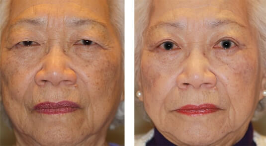 Asian Blepharoplasty 5