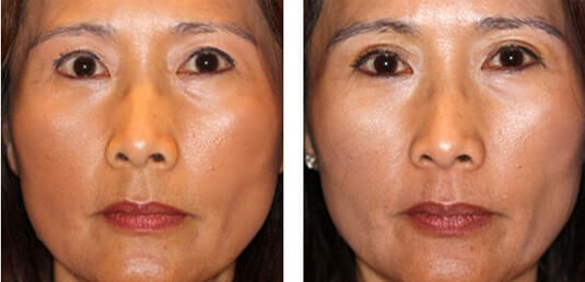Asian Blepharoplasty 2