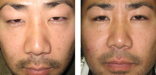 Asian Blepharoplasty 3