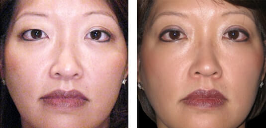 Asian Blepharoplasty 4
