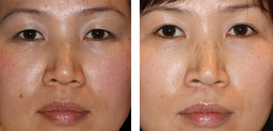 Asian Blepharoplasty 1