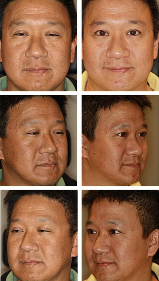Asian Blepharoplasty 7