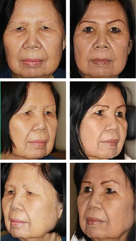 Asian Blepharoplasty 6