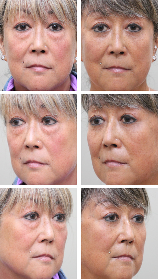 Before and After Picture  61 Year Old Female - Lower Blepharoplasty
