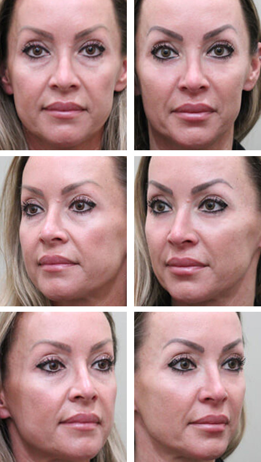 Before and After Picture  40 Year Old Female - Lower Blepharoplasty and Periocular Laser Skin Resurfacing.