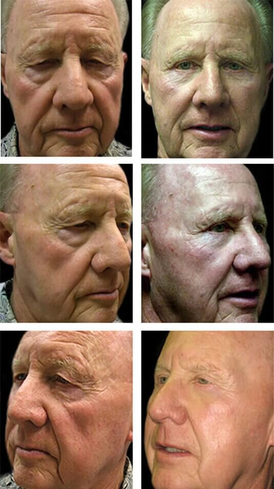 Mid Facelift Cheek lift