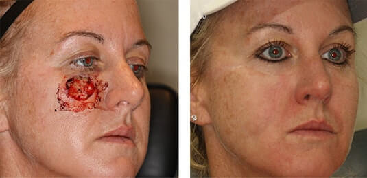 Skin Cancer Reconstruction 12