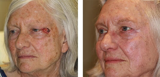 Skin Cancer Reconstruction 17