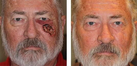 Skin Cancer Reconstruction 20