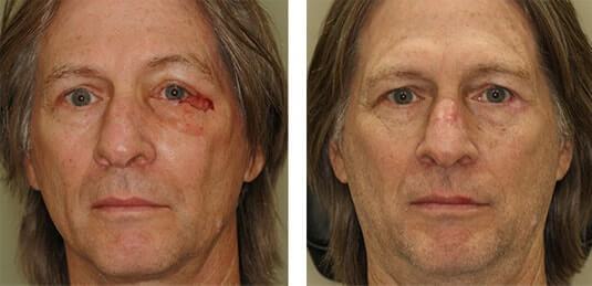 Skin Cancer Reconstruction 21