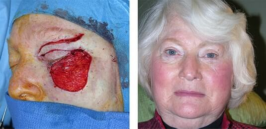 Skin Cancer Reconstruction 24
