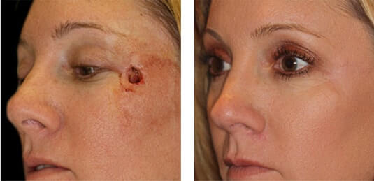 Skin Cancer Reconstruction 2