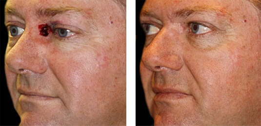 Skin Cancer Reconstruction 4