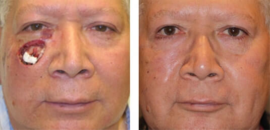 Skin Cancer Reconstruction 7