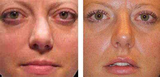 Thyroid Eye Disease Photos Before And After Dr Michael Mccracken