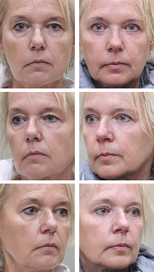 Before and After Picture  62 Year Old Female - Upper and Lower Blepharoplasty with Laser Skin Resurfacing