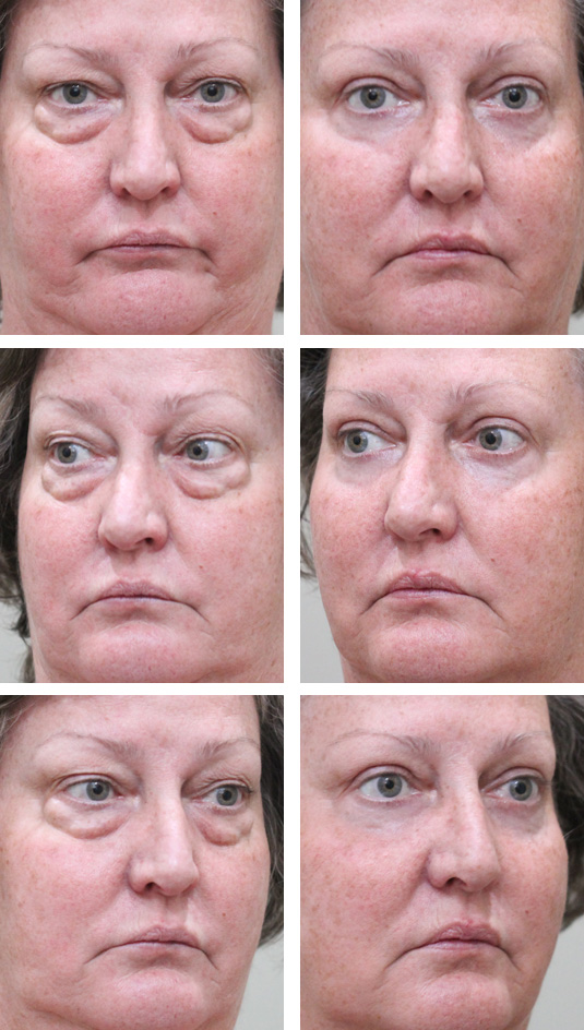 Before and After Picture  60 Year Old Female – Upper and Lower Blepharoplasty with Laser Skin Resurfacing