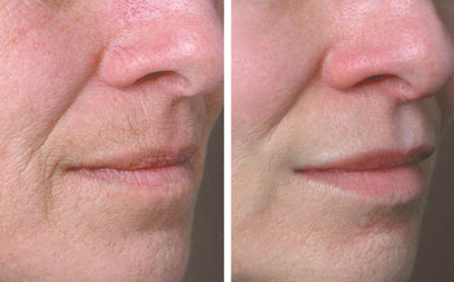 Juvederm volbella before and after patient 01 3/4th right side view