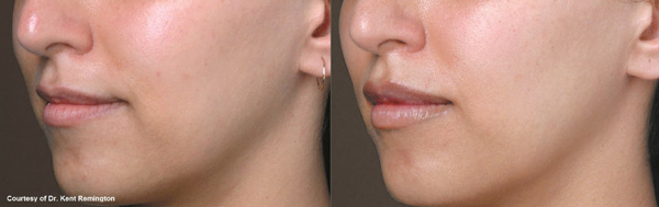 Juvederm volbella before and after patient 3/4th left side view