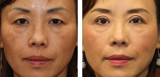 Asian Blepharoplasty 8