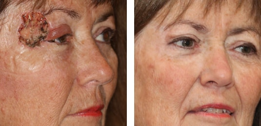 Skin Cancer Reconstruction 25