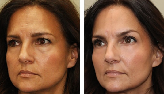 Before and After Picture  52 Year Old Female - Volbella injection