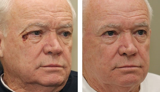 Eyelid Tumor Reconstruction Before and After Front Angle Dr. Michael McCracken