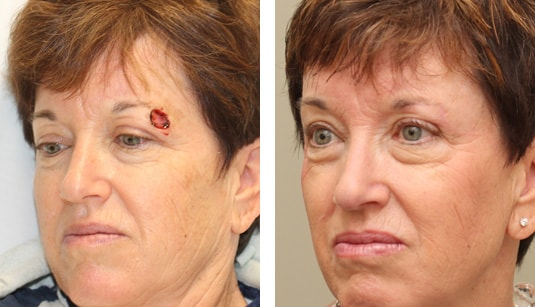 Eyelid Tumor Reconstruction Before and After Left Angle Dr. Michael McCracken