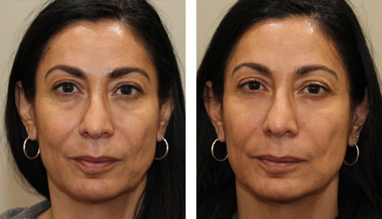 Before and After Picture   49 Year Old Female - Restylane to Tear Troughs and Nasolabial Folds
