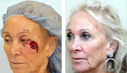 Skin Cancer Reconstruction 26