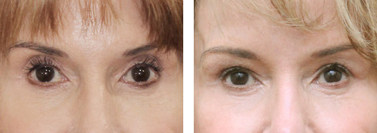 Before and After Picture  73 year old female - Bilateral upper lid Restylane injection to correct upper lid hollowness