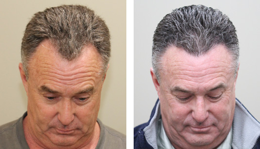 Before and After Picture   55 Year Old Male, 6 Months s/p 1400 Grafts to the Hairline