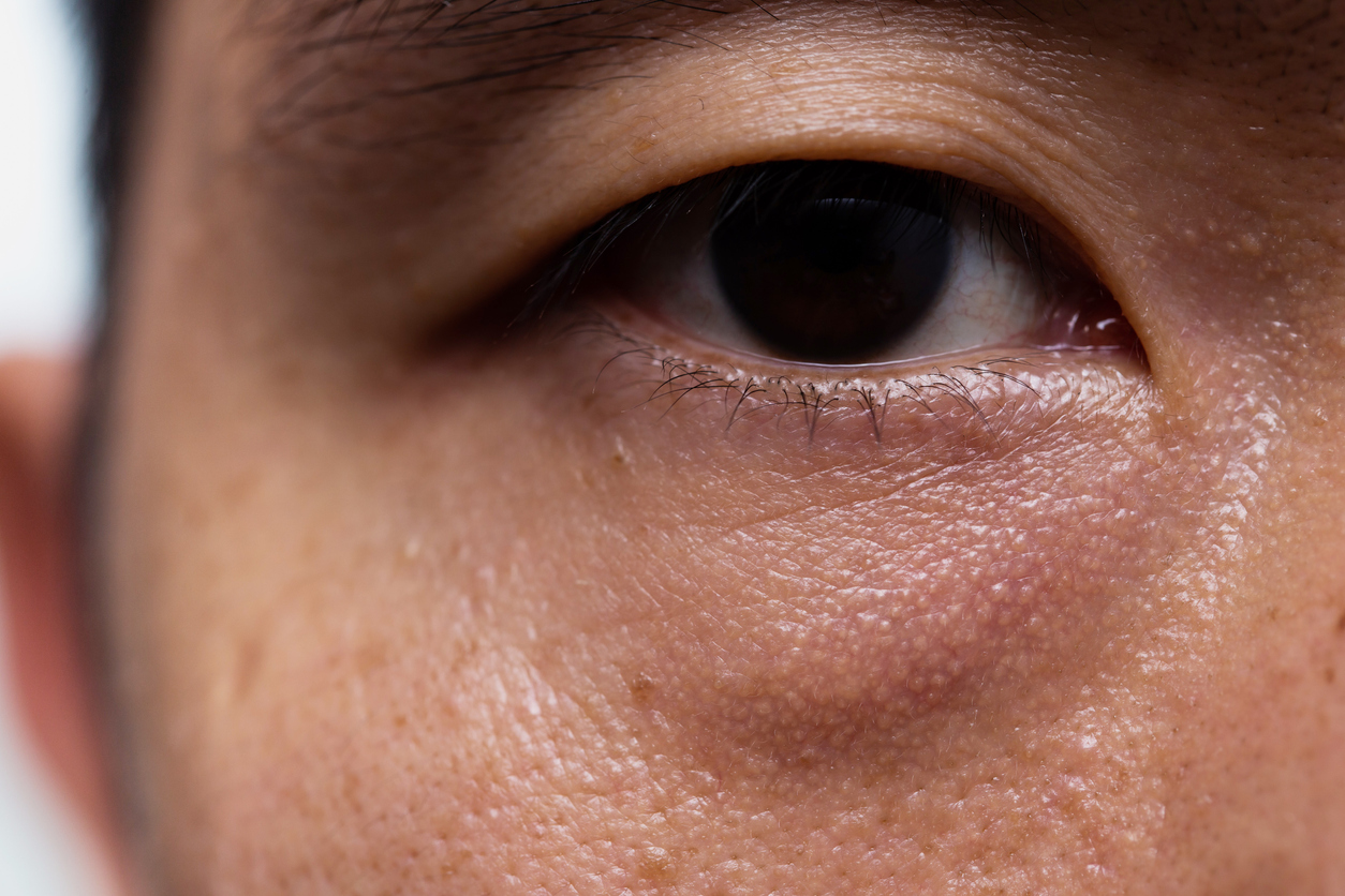What causes droopy eyelids?