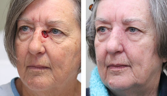 Eyelid Tumor Reconstruction patient 44