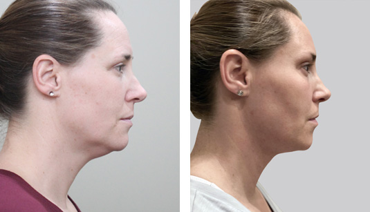 Before and After Picture  45 year old female – FaceTite to the neck and jowls and Morpheus8 (RF microneedling) to the face and neck