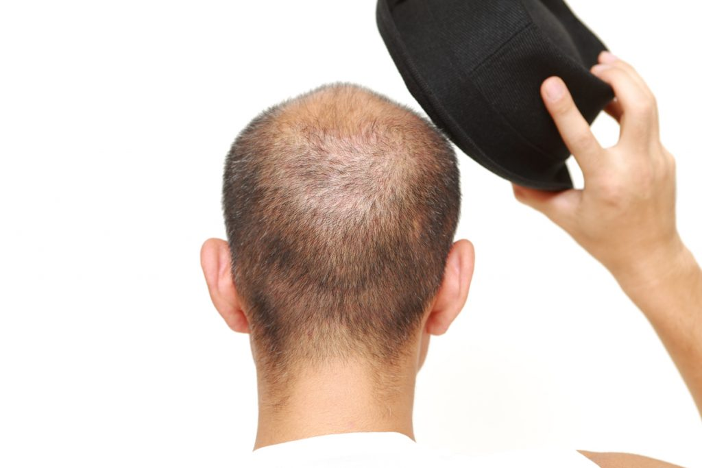 The idea that hats cause hair loss is a total myth