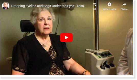 Thumbnail of a Drooping Eyelids and Bags Under the Eyes – Testimonial From Dr McCracken's Eyelid Surgery patient video - click to see