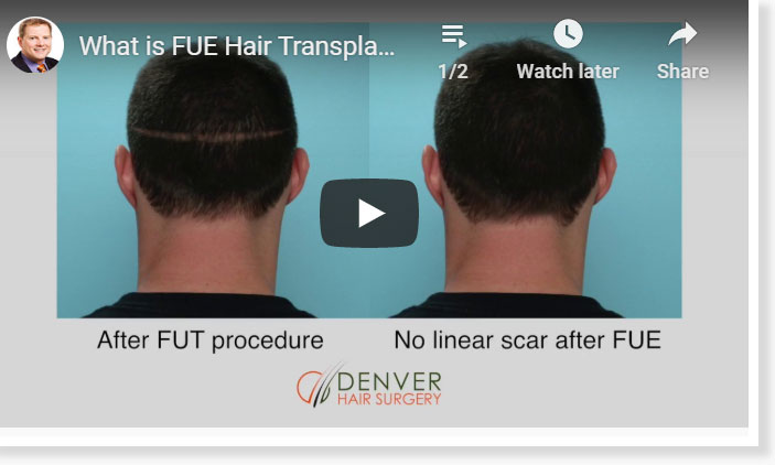 Thumbnail of a What is FUE Hair Transplant and NeoGraft in Denver, CO video - click to see