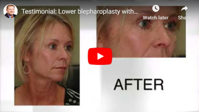 Thumbnail of a Lower blepharoplasty with CO2 Laser Skin Resurfacing video - click to see