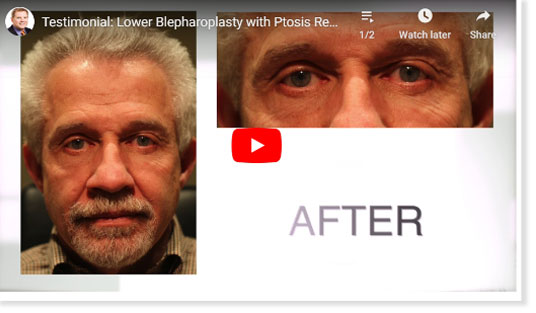 Thumbnail of a Lower Blepharoplasty with Ptosis Repair video - click to see