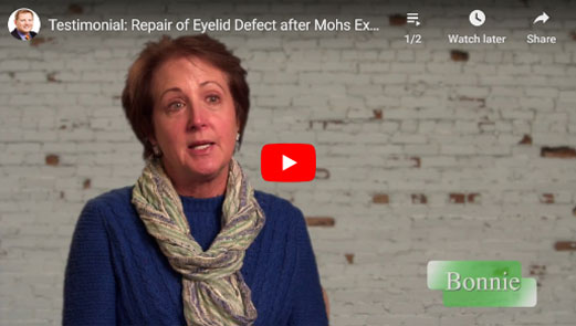 Thumbnail of a Repair of Eyelid Defect after Mohs Excision of Skin Cancer - click to see