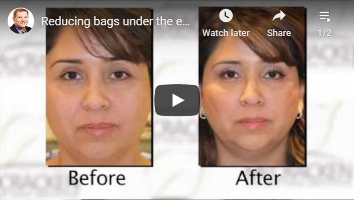 Thumbnail of a Reducing Bags Under the Eyes with Restylane video - click to see