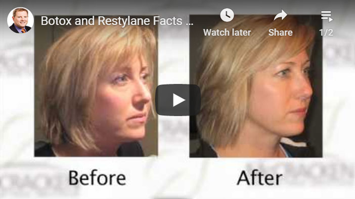 Thumbnail of a The Difference Between Restylane® and BOTOX® Cosmetic video - click to see