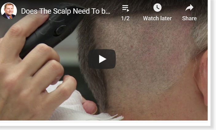 Thumbnail of a Does The Scalp Need To be Shaved with FUE Hair Transplant? video - click to see