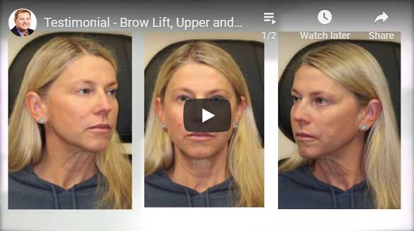 Thumbnail of a Brow Lift, Upper and Lower Blepharoplasty, and CO2 Laser Skin Resurfacing - click to see