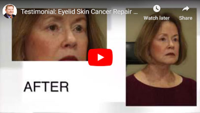 Thumbnail of a Eyelid Skin Cancer Repair Followed by Lower Blepharoplasty video - click to see