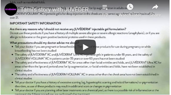 Thumbnail of a Tami's story with JUVÉDERM VOLUMA® XC video - click to see