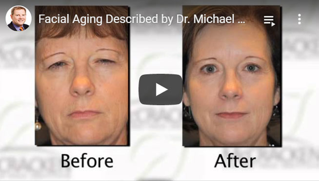 Dr. Michael explained about Facial aging video - Click to see